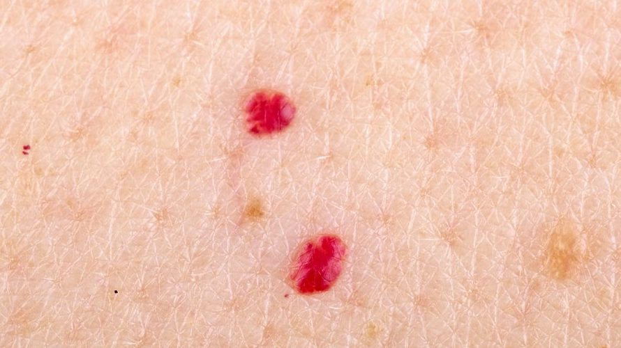 Cherry Angioma Removal At Home: Causes, Symptoms, and Treatments