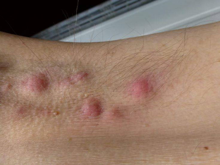 Hidradenitis Natural Treatment
