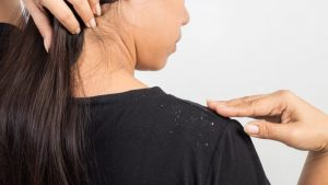 How to Get Rid of Dandruff without Washing Hair