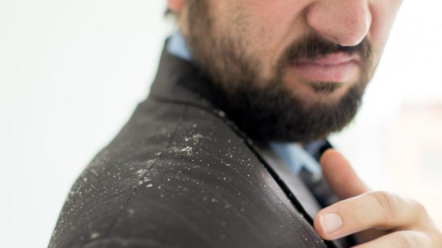 Why Do I Have So Much Dandruff?