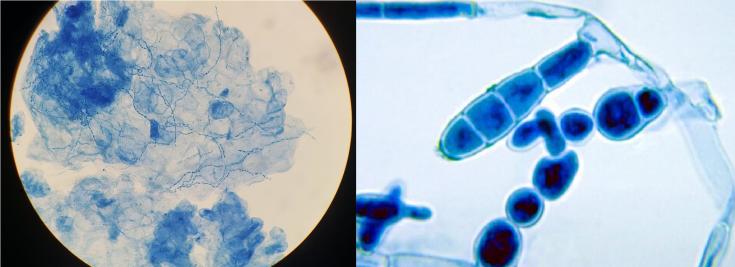 dermatophytes under microscope