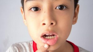 Blood Blister In Mouth: Causes, Symptoms, And Treatments