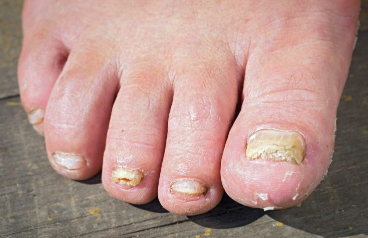 ringworm in toenails