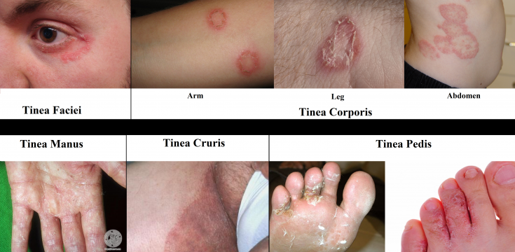 type of ringworm