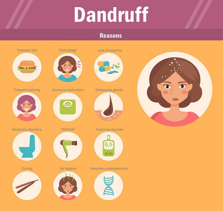causes of dandruff