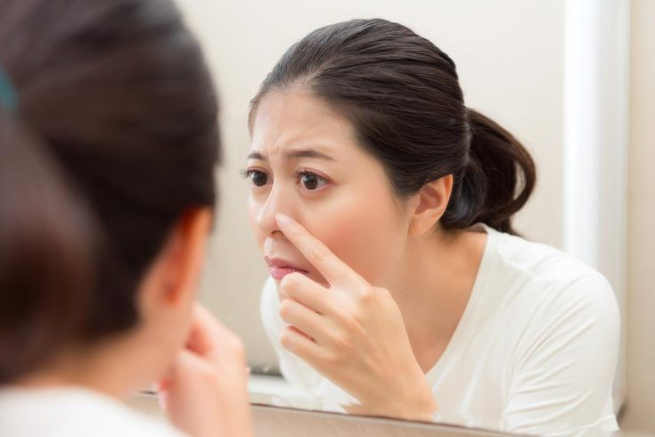 using retinoid for treating acne