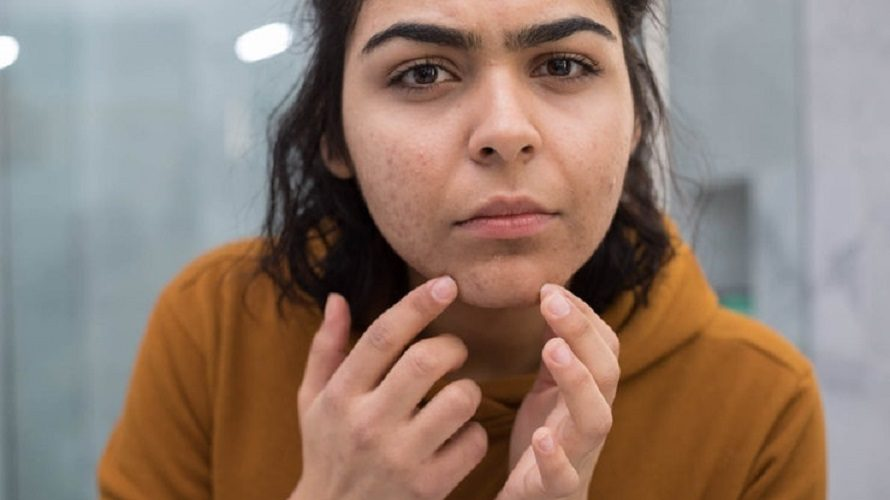 How Long Do Blackheads Last?