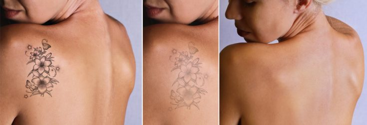 healing also depends on the size of the tattoo