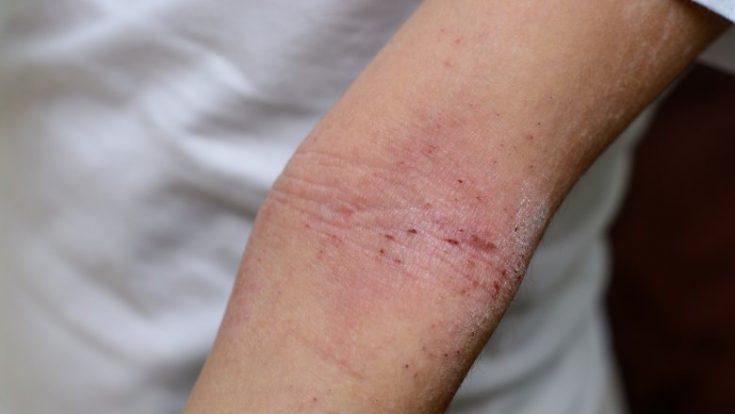 Undesirable skin rash