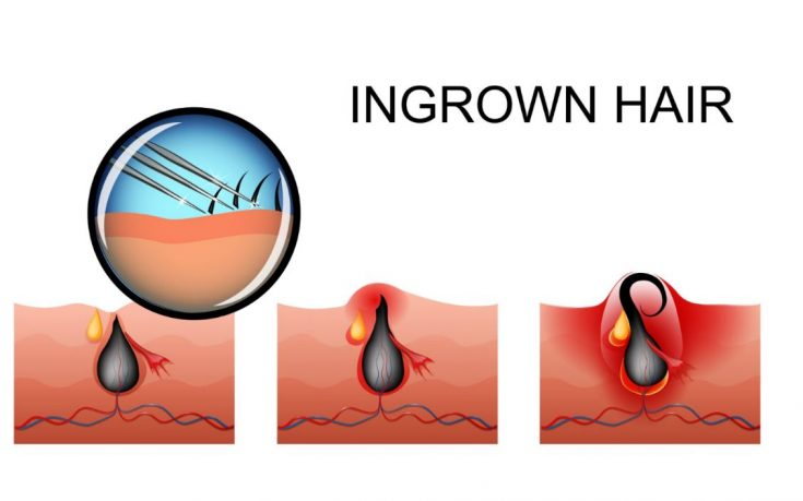 How ingrown hair is formed