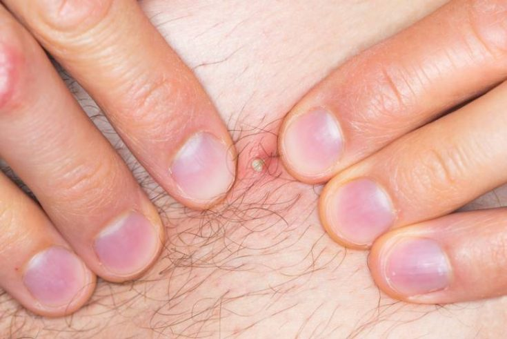 Ingrown hair can happen to anyone