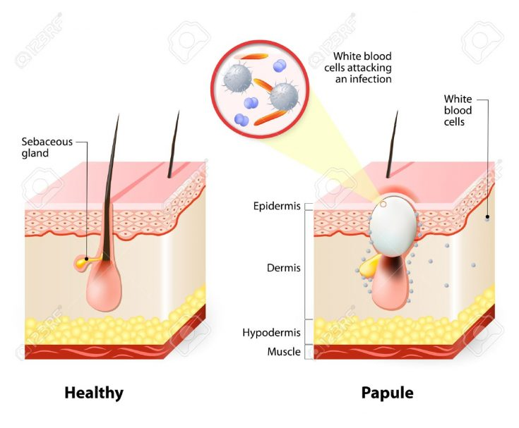 Blackheads are caused by too much oil secretion of your sebaceous glands.