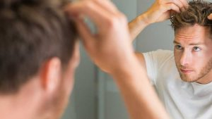 How To Get Rid Of Dandruff? The Complete Guide