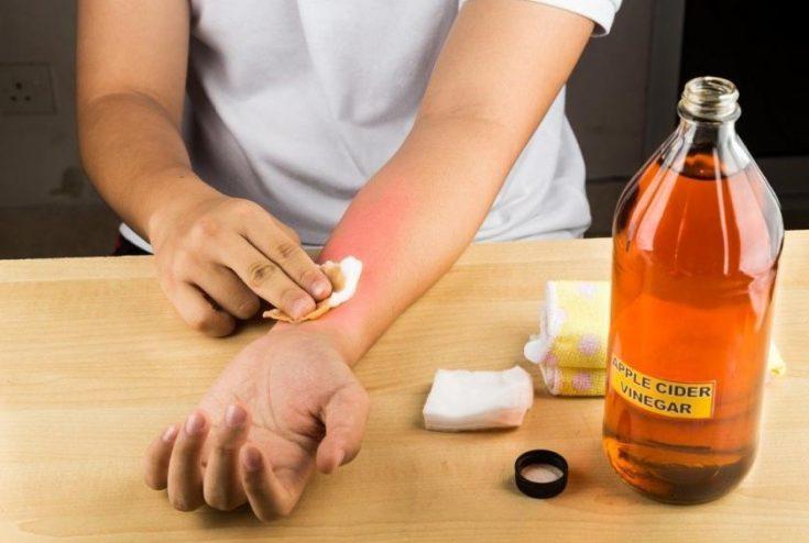Apple cider vinegar can improve the skin texture