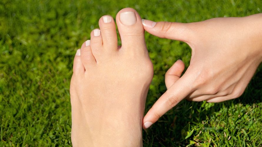 How To Get Rid Of A Bunion: Natural Remedies And Conventional Treatments