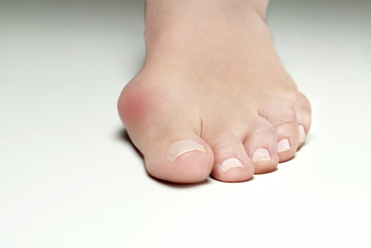 Bunion is a lumpy and bony abnormality created at the base joint of the big toe