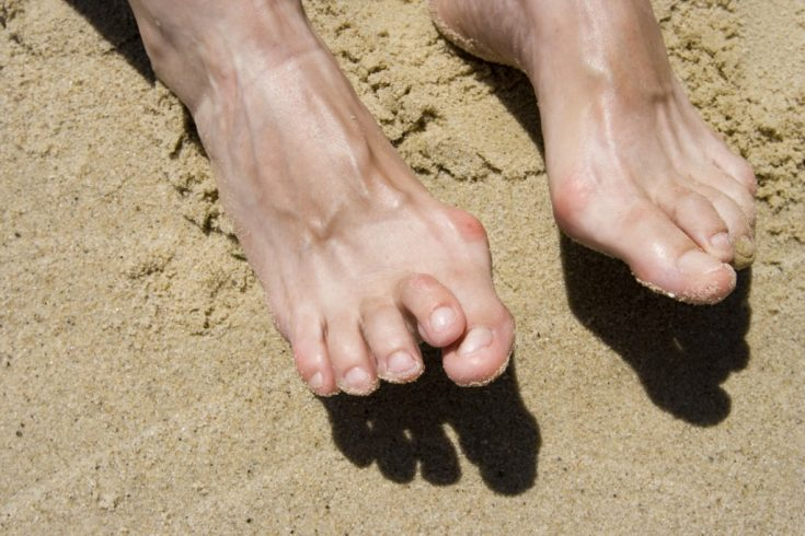Excessive weight can cause bunion