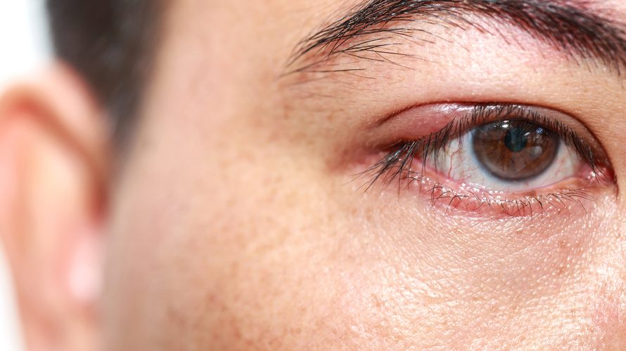 How To Get Rid of A Chalazion: Natural Remedies, Traditional Medicine, Prescribed Medications And Surgery