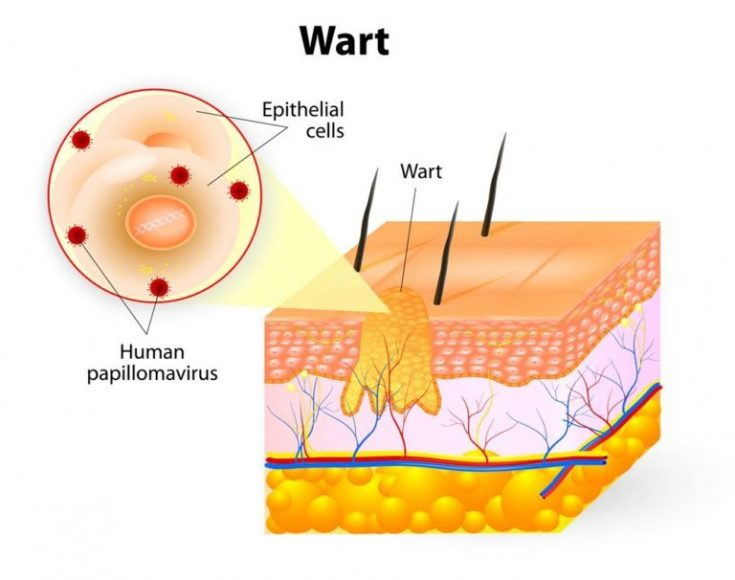Genital wart is another STDs that can be confused with Fordyce spots