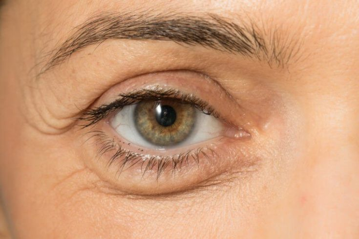 Dermatitis could be easily mistaken for chalazion